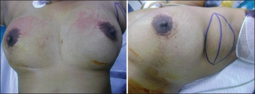 Nipples after breast reduction