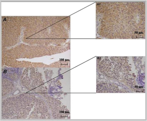 Immunohistochemical UTR expression in NMIBC. A, A1): High UTR expression (20x, 40x) in a patient without recurrence; B, B1): low UTR expression (20×, 40×) in a patient with recurrence.