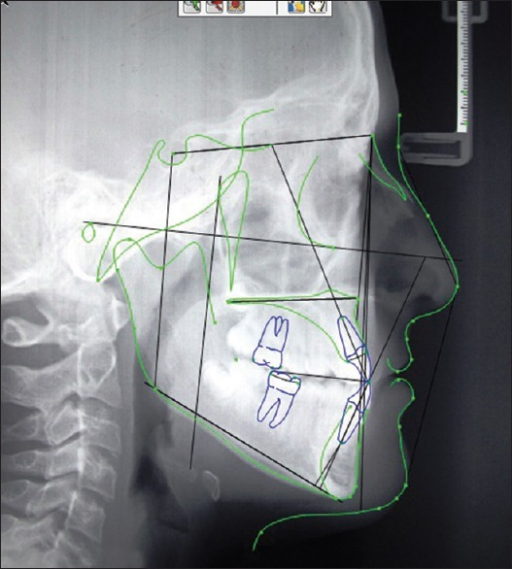 The cephalometric landmarks and lines registered on the Dolphin V 10.0 software are depicted on the lateral cephalogram