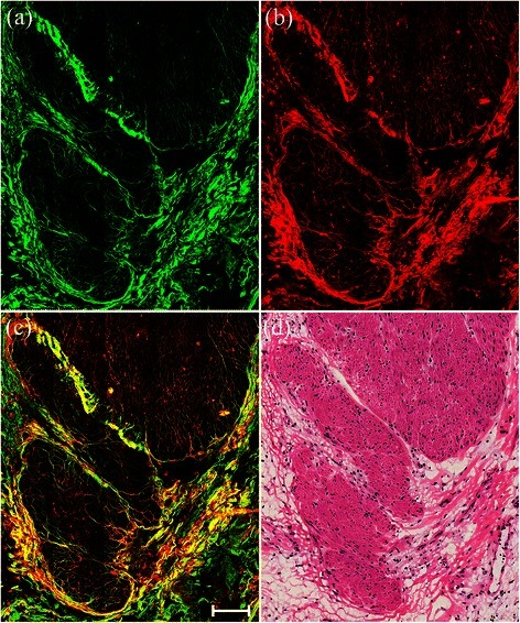 Representative TPEF/SHG images of stromal alterations in rectal carcinoma after preoperative radiochemotherapy characterized by fibrosis or fibroinflammatory changes. Scale bar = 100 μm. (a) SHG image (green); (b) TPEF image (red); (c) overlay of SHG/TPEF images; and (d) corresponding H&E-stained image (40× magnification).