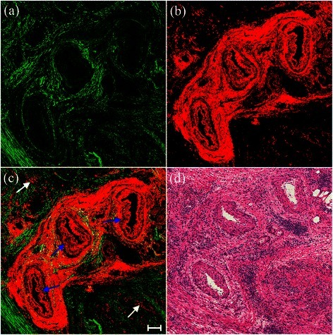 Representative TPEF/SHG images of blood vessel changes with thickening and fibrosis of the intima and media, and inflammatory cell infiltration. Scale bar = 100 μm. (a) SHG image (green); (b) TPEF image (red); (c) overlay of SHG/TPEF images; and (d) corresponding H&E-stained image (40× magnification).
