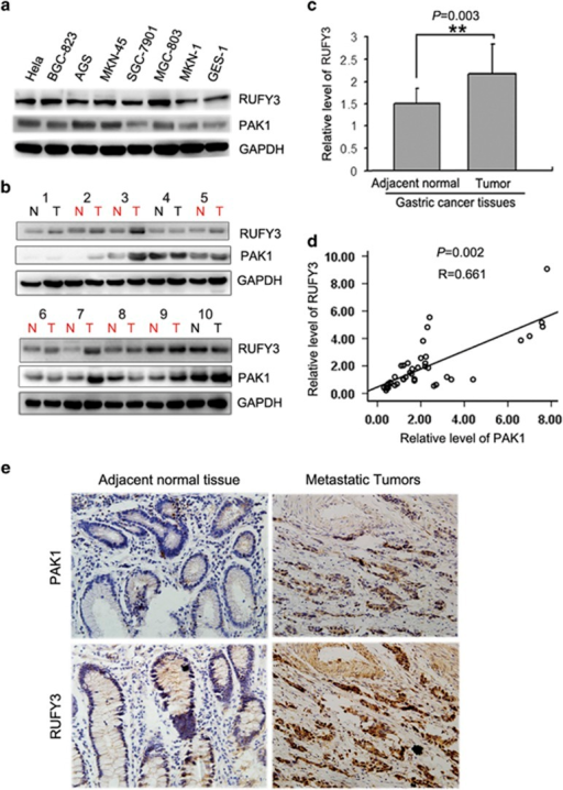 The positive correlation between RUFY3 and PAK1 in gastric cancer cells and clinical gastric cancer tissue samples. (a) The protein levels of RUFY3 in gastric cancer cell lines (BGC-823, MKN45, AGS MGC-803, SGC-7901, BGC-823 and MKN1) relative to the normal gastric epithelial cell line (GES-1) were analyzed by western blot. (b) The protein level of RUFY3 is positively correlated with PAK1 in gastric cancers and matched adjacent normal gastric tissue samples. Total protein from gastric cancer samples was extracted, and the protein levels of RUFY3 and PAK1 were measured by western blot. (c) Histogram showed the relative level of RUFY3 in gastric cancer tissues. Among 40 patients with gastric cancer, 28 of 40 (70%) samples revealed >50% increase in the RUFY3 level relative to their matched non-tumor adjacent tissues (P=0.003). (d) The relative protein level of RUFY3 was plotted against that of PAK1 in gastric cancers tissue samples with Spearman's correlation statistical analysis from (b). Spearman's correlation coefficient is 0.661 (P=0.002). (e) Immunohistochemical analyses of RUFY3 and PAK1 expression in adjacent normal gastric tissues and metastatic gastric cancer. Scale bar, 50 μm