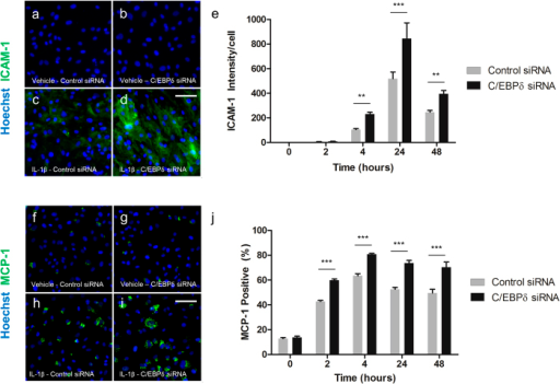 C/EBPδ knockdown enhances IL-1β induced MCP-1 and ICAM-1 protein expression.Human brain pericytes were transfected with 50 nM of control or C/EBPδ siRNA for 48 hours. Following transfection, cells were treated with vehicle or 10 ng/mL IL-1β for 2–24 hours and cells fixed and immunostained for ICAM-1 and MCP-1. Representative images of ICAM-1 and MCP-1 immunostaining respectively with vehicle and control siRNA (a,f), vehicle with C/EBPδ siRNA (b,g), 24 hours IL-1β with control siRNA (c,h) and 24 hours IL-1β with C/EBPδ siRNA are shown (d,i). Intensity of ICAM-1 staining (e) and the percentage of MCP-1 positive cells (j) were determined. Data is displayed as mean ± SEM from three independent experiments. ** = p < 0.01, *** = p < 0.001. Scale bar = 100 μm.