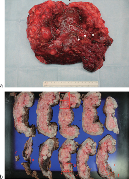 (a) Histopathological study of the placenta that failed to deliver spontaneously following cesarean section. The surgery was converted to open hysterectomy. The white arrow indicates the abnormal adherence between the uterine myometrium and placenta. (b) Histopathological analysis of the placenta at 20 weeks of gestation, confirming placenta previa complicated by placenta accreta in the sections numbered 3–6.