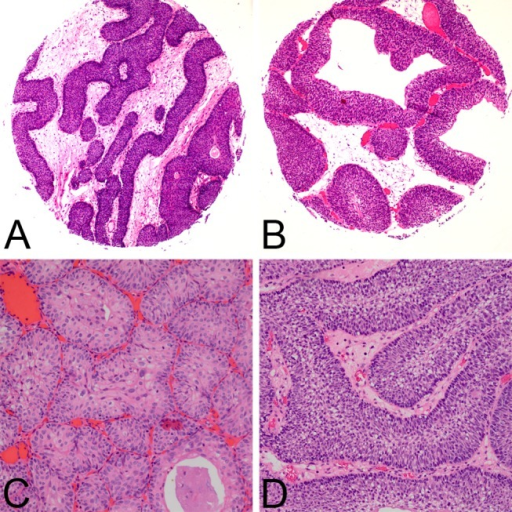 Clinicopathological features of inverted papilloma.IUPs were mainly comprised anastomosing cords, which were thin and congruous in width (A), or nests (C). Cysts were occasionally observed in the interiors of the nests (B). Peripheral palisading nuclei were observed (D).