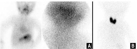 Thyroid scintigraphy revealing thyroid agenesis in a 6 month-old boy (A), increased Tc-99m O4 uptake in the enlarged thyroid gland in a one month-old boy with documented hydrogen peroxide generation defect (B)