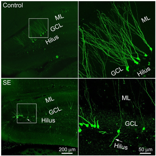 Representative images show 4-month old newborn granule cells labeled by the CAG-GFP retroviral vector in the control and SE rats. Rats were sacrificed 4 months after the CAG-GFP retroviral vector injection and coronal sections through the right hippocampus were cut into 80 μm. Z-series stacks of 2 μm were taken by a Zeiss LSM 780 confocal microscope. The white box-indicated regions in the left panels were scanned under a higher objective and are shown in the right panels, correspondingly. Arrows indicate the newborn granule cell that has a basal dendrite attached to the soma. ML, molecular layer; GCL, granule cell layer.