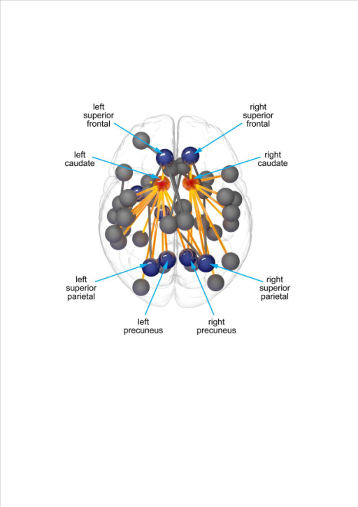 Diffuse structural connectivity loss occurs early in Huntington's disease. However, the organizational principles underlying these changes are unclear. Using whole brain diffusion tractography and graph theoretical analysis, McColgan, Seunarine et al. identify a specific role for highly connected rich club regions as a substrate for structural connectivity loss in Huntington's disease.