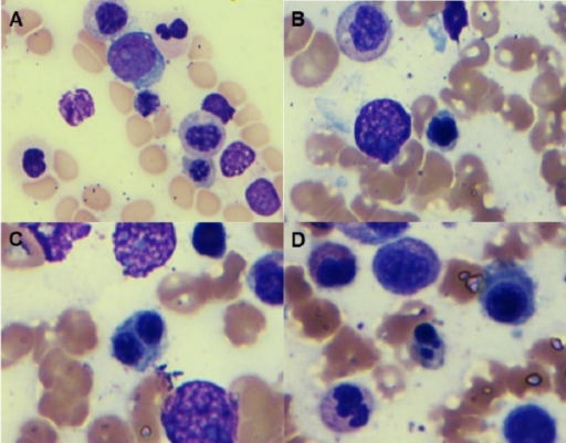 Granulocytic precursors(1000X, Wright-Giemsa stain): Bone marrow aspiration smear shows granulocytic precursors with slight hypogranulation (A) and dyserythropoiesis including nuclear contour irregularity (B), bi-nucleation (C), and Budding (D)