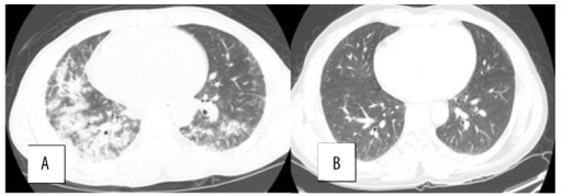 (A) Chest CT axial view shows patchy areas of consolidation, predominantly in lower lobes. (B) Chest CT axial view shows complete resolution of consolidation at the 1-month follow-up visit.