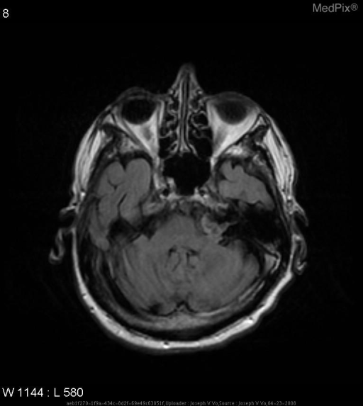 Slightly hyperintense mass with irregular contour at the left cerebellopontine angle.