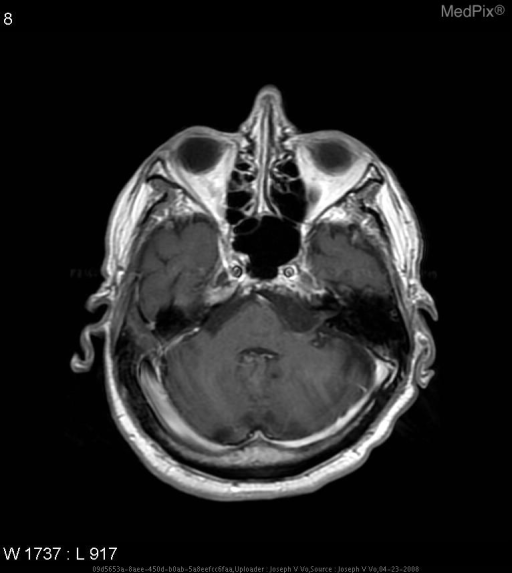 There is a hypointense mass with irregular borders in the left cerebellopontine angle.  There is no enhancement.