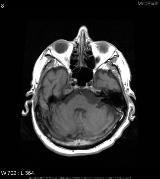 There is a hypointense mass with a slightly hyperintense irregular contour at the left cerebellopontine angle.