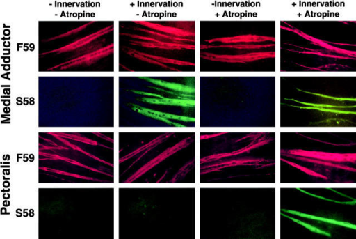 Effects of innervation and atropine on slow MyHC2 expression. PM (pectoralis) and MA (medial adductor) muscle fiber cultures were prepared as described in Materials and methods. On day 3 of incubation, ED5 spinal cord explants were added to half of the cultures to provide innervation of muscle fibers. 200 μM atropine was also added to the culture medium of half the cultures on day 3 of incubation. On day 7 of incubation, cells were fixed and immunostained for fast MyHC and slow MyHC2 with mAbs F59 and S58, respectively, followed by fluorochrome-conjugated secondary antibodies. slow MyHC2 expression was detected in innervated MA muscle fibers with and without atropine. slow MyHC2 expression was detected in innervated PM muscle fibers incubated in medium containing atropine.