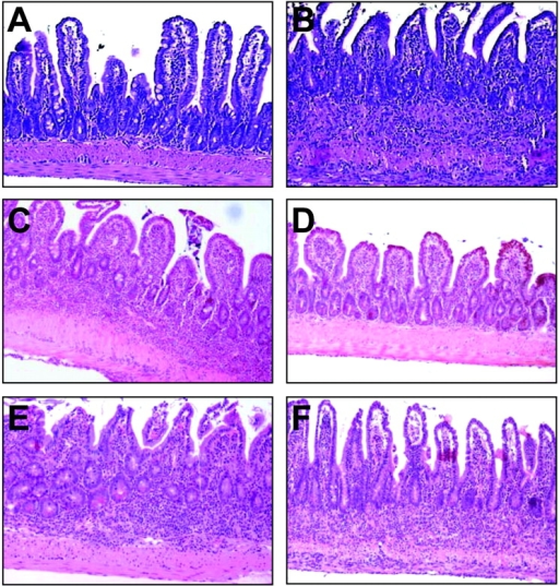 TNF individually targets hemopoietic and stromal components to induce IBD. Representative photomicrographs of ileal sections from bone marrow–reconstituted mice. (A) Tnf+/+ bone marrow into Tnf+/+ recipient, (B) TnfΔARE/+ bone marrow into Tnf+/+ recipient, (C) anti-TNF–treated control, (D) Tnf+/+ bone marrow into Tnf ΔARE/+ recipient (refer to Materials and Methods and text for details), (E) TnfΔ/Δ TNFRI/II−/− bone marrow into Tnf+/+ recipient, and (F) TnfΔARE/+ bone marrow into TNFRI/II−/− recipient. Paraffin sections stained with hematoxylin and eosin. ×100.