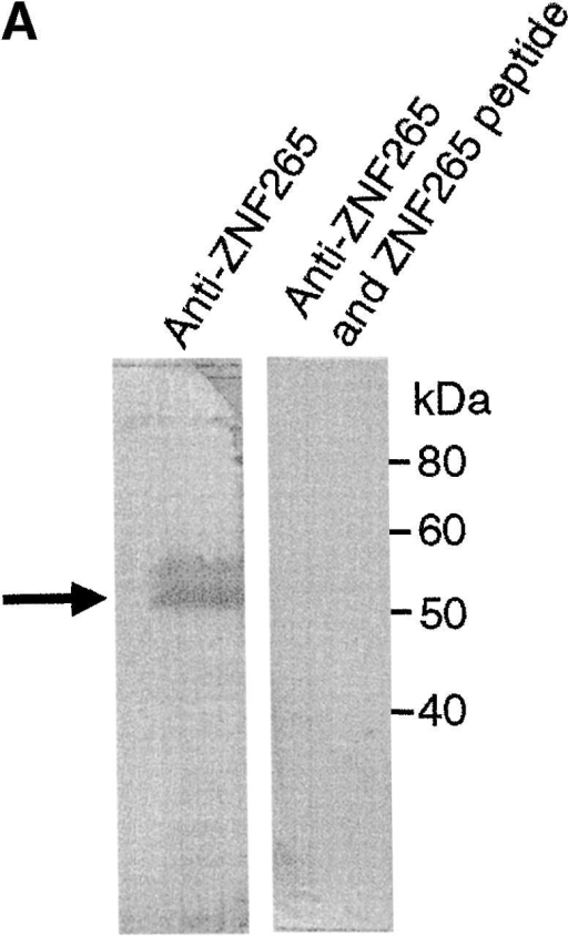 Subcellular colocalization of endogenous ZNF265 with endogenous nuclear factors. (A) Immunoblotting assay demonstrates specific recognition of ZNF265 by the polyclonal ZNF265 antibody (the arrow shows a 55-kD band), which was competed by ZNF265 oligopeptide antigen (2.5 μg/ml) in three replicate experiments. (B) Subcellular localization of various protein factors. Fixed Calu-6 cells were exposed to: (1st column) monoclonal antibodies against splicing factors U1-70K, Sm antigen, SC35, SMN, or transcriptosomal factors p300 and YY1, in respective rows, before incubation with Alexa 594 anti–mouse IgG (red); (2nd column) staining with anti-ZNF265 and detection with Alexa 488–conjugated anti–rabbit IgG (green); (3rd column) DAPI staining of nucleus (blue); (4th column) digital overlay of Z-series projections shown in columns 1 and 2 to demonstrate colocalization (yellow); (5th column) scattergrams of the overlayed projection shown in column 4. Each row represents the same field (width × height = 60 × 60 μm), acquired using three-channel confocal microscopy.