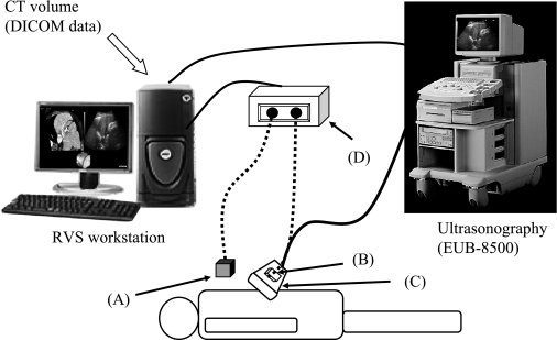 Summary of the Real-time Virtual Sonography system (Hitachi Medical, partially modified). Step 1: Using the xiphoid process as a reference point, match positional coordinates for positional synchronization. Step 2: Gather positional information from the magnetic sensor attached to the probe. Step 3: An MPR image matching the positional information from the probe is reconstructed based on CT volume data and displayed on the workstation monitor.A: Magnetic field generator. B: Magnetic sensor. C: Probe. D: Magnetic position detecting unit.