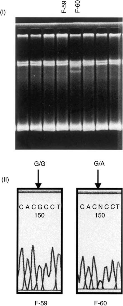 Detection of G282A mutation of the RNASEL gene. (I) An aberrant pattern of SSCP was observed in F-60. The pattern of F-59, the affected brother of F-60, was normal. (II) Direct sequencing showed G/A heterozygous pattern of G282A in F-60. Wild-type G/G genotype was observed in F-59.