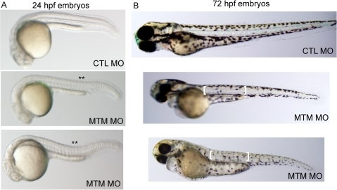 Abnormal morphology in myotubularin morphant embryos.(A) Live embryos at 24 hpf injected with either control (CTL) or myotubularin (MTM) morpholinos. MTM morphants are of equivalent size, but are bent or U-shaped in appearance. (B) Live embryos at 72 hpf injected with control (CTL MO) or myotubularin (MTM MO) morpholinos. MTM morphants are mildly dysmorphic in appearance, and display selective thinning of the muscle compartment (brackets) as well as foreshortening of their tails.