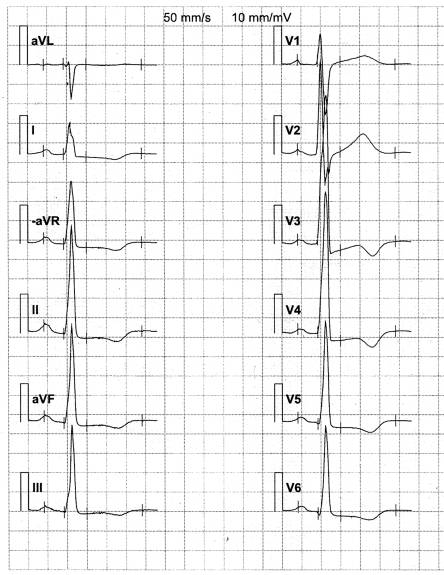 The ECG of a 25 year-old female with hypertrophic cardiomyopathy, who suffered a cardiac arrest while rushing to catch a train but was successfully rescuscitated. Echocardiographically she has moderate hypertrophy with septal thickness 2.5 cm, posterior left ventricular wall 0.8 cm, and maximal wall thickness of 2.6 cm on short-axis and apical views, and there is no dynamic left ventricular outflow tract obstruction, nevertheless there are extensive ST-T-wave abnormalities. Her values on important ECG-measures on her first ECG were: limb-lead amplitude sum = 10.9 mV; limb-lead amplitude–duration product = 0.89 mV s; 12-lead amplitude–duration product = 2.29 mV s; risk score = 8 points; all above high-risk cut-offs. Sokolow–Lyon index on the other hand is normal, 3.8 mV.