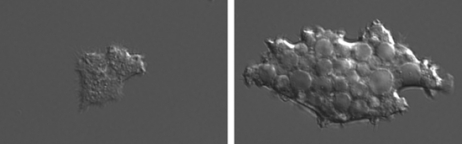 A wild-type Dictyostelium (left) contrasts with one lacking WASH (right), which is crammed with vesicles containing indigestible dextran.