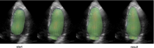 Endocardial border detection in a 3D image. The borders are described as spatial coordinates (blue dots) in 3D. The initial position of the borders and the results after 10, 20, and 39 (final) results are shown