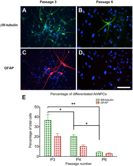 Photomicrograph and bar graph illustrating the decrease in neurogenic capabilities observed with increased culture duration.(A, C) Illustrates the extent of neuronal (βIII-tubulin) and astrocytic (GFAP) differentiation seen after 3 weeks of differentiating AhNPCs from cultures at passage 3. (B, D) Illustrates the same parameters when AhNPC cultures from passage 6 were differentiated. These images demonstrate the dramatic decline in the neurogenic capabilities of the AhNPC cultures with increased culture duration. (E) Quantification of the percentage of differentiated neurons and astrocytes derived from the 3 independent cases using automated images analysis. Statistical analysis using one-way Anova demonstrates the significant reduction in the percentage of βIII-tubulin cells (*  =  P<0.05, **  =  P<0.01).