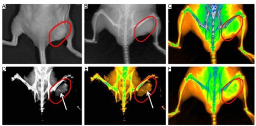 Real-time in vivo X-ray images after intravenous injection of GNR-SiO2-FA into nude mice at different point in time. A: Photograph of the tumor tissue; B: X-ray image at 0 h; C: X-ray image at 0 h (in color); D: X-ray image at 12 h; E: X-ray image at 12 h (in color); F: X-ray image at 24 h (in color). Reprinted with permission from [40], Huang P, Bao L, Zhang CL, et al. Folic acid-conjugated Silica-modified gold nanorods for X-ray/CT imaging-guided dual-mode radiation and photo-thermal therapy. Biomaterials 2011; 32: 9796-9809.