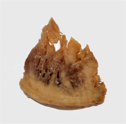 Pathologic specimen showing LVNC in a DMD patient. The image shows a piece of myocardium removed from the apex during implantation of a left ventricular assist device. There is extensive noncompacted myocardium extending form the compacted myocardium in finger-like projections. DMD, Duchenne Muscular Dystrophy.