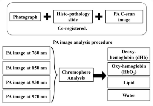Photoacoustic (PA) image analysis procedure. Chromophore analysis was performed on the acquired multispectral composite PA images to extract individual optical absorption maps of dHb, HbO2, lipid and water. Each PA image is co-registered with the photograph of gross prostate tissue and histopathology for further evaluation.