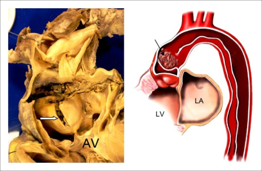 (A) Open ascending aorta showing the dissection with the inner layer of thearterial wall protruding into the valve plane. The white arrow shows this region,with the section taken for histological analysis. The light blue arrow indicatesthe tear that defines the dissection orifice, in this case affecting the entirecircumference of the artery - artistic illustration of the pathological process.The arrow indicates a clot in false lumen, pushing down the inner part of theaortic wall. LA: left atrium; AV: aortic valve; LV: left ventricle.