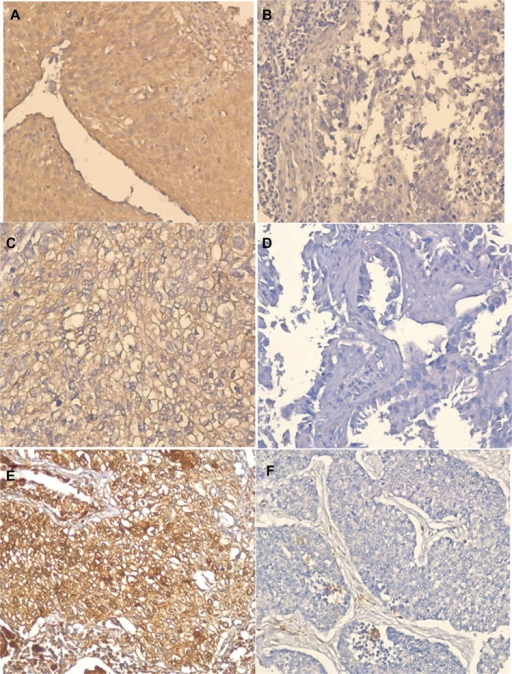 Representative images of immunohistochemical staining in human NSCLC tissues (original magnification, ×200).Notes: (A) TS-positive expression; (B) TS-negative control; (C) OPRT-positive expression; (D) OPRT-negative control; (E) TP-positive expression; and (F) TP-negative control.Abbreviations: NSCLC, non-small cell lung cancer; OPRT, orotate phosphoribosyltransferase; TP, thymidine phosphorylase; TS, thymidylate synthase.