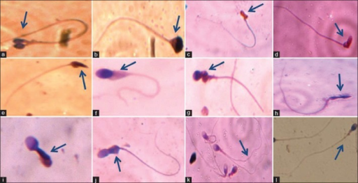 Sperms with different morphological features in studied semen samples: (a) Double head; (b) Pyriform head without acrosome; (c) Abnormal head with irregular acrosome; (d) Bent necked; (e) Cytoplasmic residues with tapered head; (f) Cytoplasmic residues and small acrosome; (g) Round head with abnormal mid-piece; (h) Long amorphous head; (i) Immature spermatozoa; (j) Abnormal mid-piece; (k) Double tailed; (l) Normal spermatozoa