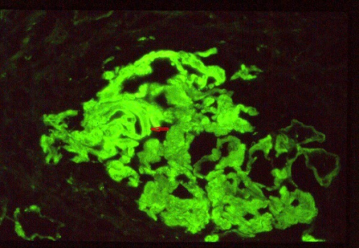 Immunofluroscence demonstrating diffuse, linear staining (red arrow) of glomerular basement membrane for IgG and C3, suggesting anti-GBM antibody deposition in renal biopsy.