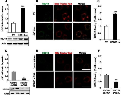 Characterization of HSD10-transfected cell lines. A. Empty vector (EV) and HSD10 overexpression (HSD10 ov) whole cell lysates were analyzed for HSD10 protein expression via immunoblotting. β-actin was used as the loading control, and HSD10 expression was normalized to actin (n = 4). B. Confocal microscopy demonstrating immunofluorescence staining of HSD10 alone (green), Mito Tracker Red alone (red), and these two antigens co-localized (yellow) in EV and HSD10 ov cells. Scale bar in B: 30 μm. C. Quantification of HSD10 immunofluorescence staining (depicted in B) displayed as fold increase (n = 5). D. Control shRNA and HSD10 shRNA whole cell lysates were analyzed for HSD10 protein expression via immunoblotting. β-actin was used as the loading control, and HSD10 expression was normalized to actin (n = 4). E. Confocal microscopy demonstrating immunofluorescence staining of HSD10 alone (green), Mito Tracker Red alone (red), and these two antigens co-localized (yellow) in control shRNA and HSD10 shRNA cells. Scale bar in E: 30 μm. F. Quantification of HSD10 immunofluorescence staining (depicted in E) displayed as fold increase (n = 5). Data presented as mean ± SE. *P < 0.01, **P < 0.001, ***P < 0.0001 verses control group.