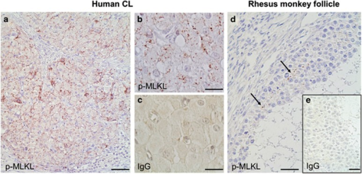 p-MLKL in primate ovarian tissue. (a and b) Cells in human corpus luteum (CL) are positive for p-MLKL. (c) IgG control lacks staining. (d) GCs in antral follicles of rhesus monkeys show positive staining for p-MLKL. (e) IgG control lacks staining. Bars indicate 100 μm (a) and 40 μm (b–e)