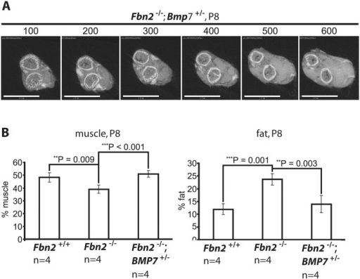 Effects of genetic ablation of one allele of Bmp7 on Fbn2  forearm muscle and fat.(A) Series of sections (numbered at the top) generated by micro-CT of forearms from Fbn2-/-;Bmp7+/- mice (compare with Fig 2D). (B) Quantitation of percentages of muscle and fat across the genotypes. Error bars indicate mean ± SD, and asterisks indicate statistically significant differences (p < 0.05) between genotypes. Bars = 1 mm.