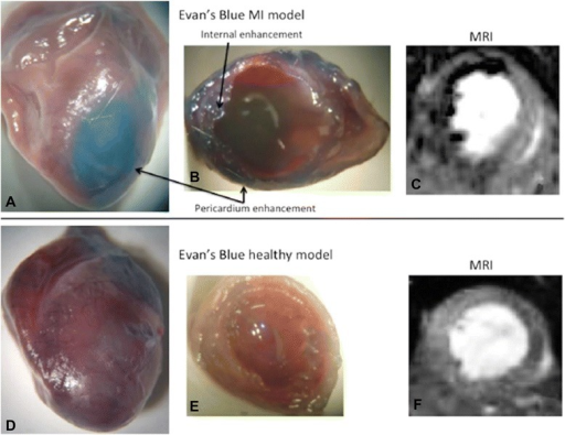 Comparison of explanted hearts from mice after induced myocardial infarction (top row) and after sham procedure (bottom row). Images a and d show myocardium stained with Evans blue indicating areas with enhanced permeability in the area of myocardial infarction (a, arrows). The corresponding sections display damaged tissue only for infarcted hearts (b vs. e) and corresponding signal void in T2-weighted MR images after infusion of VSPIO (c vs. f). Reproduced with permission from Protti et al. [53]