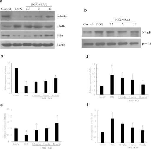 The effect of SAA on podocin, p-IκBα, IκBα and NF-κB p65 protein expressions.a and b: Protein bands; c–f: podocin, p-IκBα, IκBα and NF-κB p65 protein expressions relative densities to β-actin. Data are expressed as mean ± SD (n = 3, and n = 4 for NF-κB p65). #P < 0.05 vs. Control; *P < 0.05 vs. DOX alone. Full-length blots are presented in Supplementary Figure 5a and 5b.