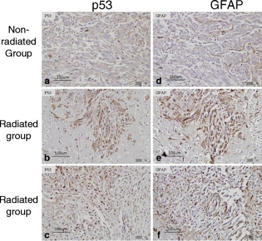 Immunohistochemistry for p53 and GFAP in brain tissues. GFAP (d,e,f) as a glial cell marker was stained to confirm whether p53 (a,b,c) positive cells were glioma cell or not