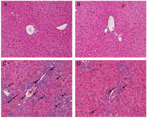 Effect of melittin in DDC-induced liver fibrosis. Hematoxylin and eosin (H&E) staining results show that melittin effectively suppresses inflammation and ductular reaction (arrowheads in (C,D)) in response of DDC feeding. Representative H&E images from each study group (five mice per group): (A) NC, normal control group; (B) Mel, melittin (0.1 mg/kg)-treated group with normal diet; (C) DDC, 0.1% DDC-supplemented diet group; (D) DDC + Mel, melittin (0.1 mg/kg)-treated group with 0.1% DDC-supplemented diet. Magnification ×200.