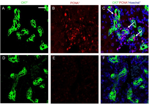 Melittin inhibits cholangiocyte proliferation in DDC-fed mice. Immunofluorescence staining shows co-localization of PCNA staining with CK-7 (arrow head) following DDC treatment. Immunofluorescence staining results demonstrated that melittin effectively suppresses the expression of PCNA. CK-7 and PCNA immune complexes were detected by anti-mouse FITC (green) and anti-rabbit Texas red (red). Nuclei were counterstained with Hoechst 33342 (blue). Representative immunofluorescence staining images from each study group ((A–C) DDC group; (D–F) DDC + Mel group). Scale bar = 20 μm.