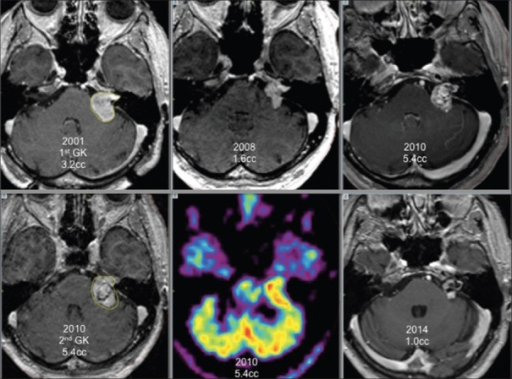 Left vestibular schwannoma, first Gamma Knife treatment in 2001 (3.2 cc), good initial response (1.6 cc in 2008), tumor regrowth in 2010 (5.4 cc), second Gamma Knife treatment in 2010 (5.4 cc) with positron emission tomography guidance, last control in 2014 (1.0 cc)