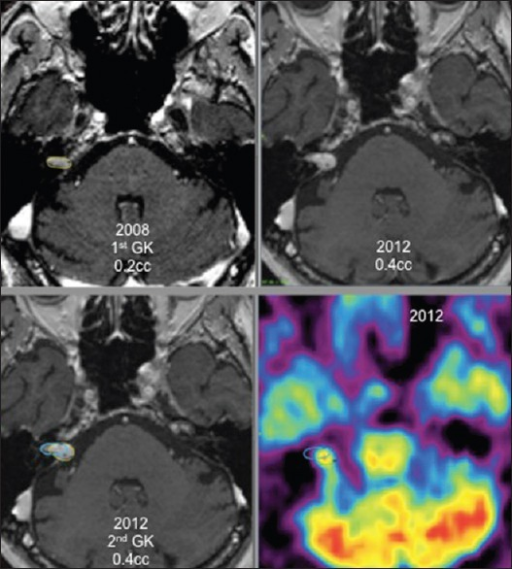Right vestibular schwannoma, first Gamma Knife treatment in 2008 (0.2 cc), tumor growth in 2012, second treatment in 2012 (0.4 cc) with positron emission tomography guidance