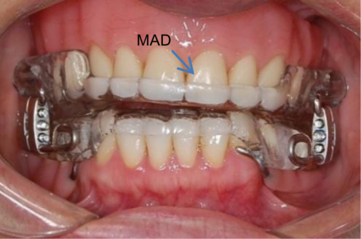 Patient with dentures and MAD installed.