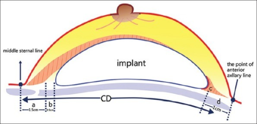 "W (implant width) = CD − (a + b + c + d) = CD − (1.5 + 0.5 + 1 + 1 or 0.5) = CD – 4 or 3.5 (cm). The serratus anterior muscle (flat red ""c"") becomes upright because of the implant projection. The ""b"" is ""death zone that implant edge could not reach to"". The ""d"" is lateral thickness of soft tissue, which is about 1 cm for regular patients and about 0.5 cm for very thin patients."