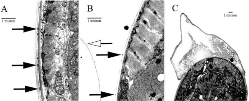 EM of Ce-Duox RNAi animals. (A) Cross-sectional view of wild-type animals showing normal cuticle structure. Arrows indicate the location of struts. (B) Cross-sectional view of an RNAi animal showing separation of the cuticle into two layers. Solid arrows indicate broken struts attached to the basal layer, and the open arrow indicates the cortical layer that has detached from the basal layer. (C) Cross-sectional view of a RNAi animal showing the full view of a blister. The animals shown are representative of 10 in each group. Magnification was 8,155× (C) and 12,575× (A and B).