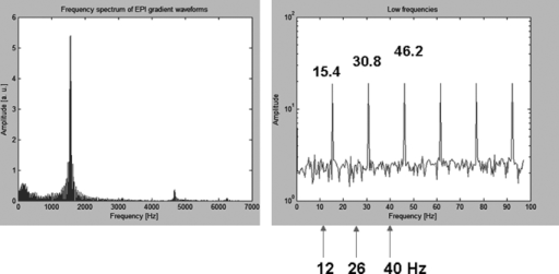 Left: depicts the frequency spectrum of echo planar imaging gradient waveforms. Right: a detailed look at the low-frequency spectrum, showing the relation with the auditory frequencies used in the experiment.