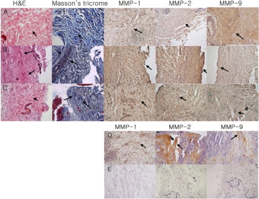 H&E stain, Masson's Trichrome stain, and immunohistochemistry of the Tenon's tissue of the control group (A), POAG group (B), PACG group (C), Positive Control (D: adenocarcinoma of colon), Negative Control (E: sections were prepared with PBS instead of primary antibody MMP-1, 2, and 9) (magnification ×200)The Tenon's tissue of both the POAG and the PACG patients under H&E and Masson's trichrome staining showed higher subepithelial collagen and fibroblast density than that of the controls. The fibrosis under H&E and Masson's trichrome staining appeared to be more advanced in the POAG patients than in the PACG patients (arrow). Compared with the controls, the level of MMP-1 and 2 were higher in the POAG patients (grade 2, 3, respectively). The expression of MMP-2 was lower in the PACG patients than the POAG patients. The level of MMP-9 was less in POAG and PACG patients than the controls.