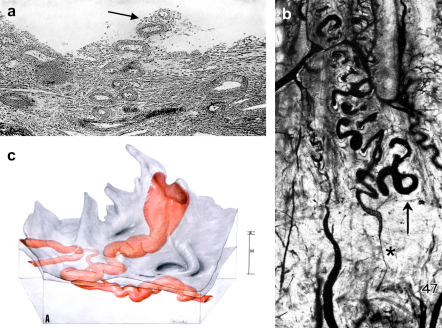 a) A photomicrograph of the human endometrium on the fourth day of menstruation showing an eroded spiral artery (arrowed) projecting freely into the uterine lumen. b) A photomicrograph of spiral arteries in a rhesus monkey during the phase of ovulation injected with India ink in gelatin. The arrow marks the endometrial–myometrial boundary, and a marked constriction (asterisked) can be seen in the spiral artery in the junctional zone just below. c) Reconstruction from serial sections of a converted spiral artery passing through the myometrium (M) and endometrium (E) before opening into the intervillous space through the basal plate of a term placenta. The widest dimension of the opening is given as 2.4 mm. Reproduced from Refs. [83], [15] and [16] respectively with permission of the Carnegie Institute of Washington.
